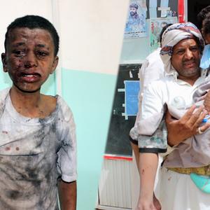 #YemeniLivesMatter: Waarom vragen mensen aandacht voor de situatie in Jemen?