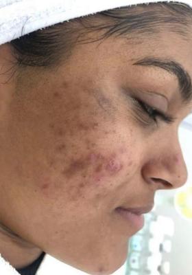 """Dealen met acne in een wereld vol Photoshop: """"Ik zou liever echte huiden willen zien"""""""