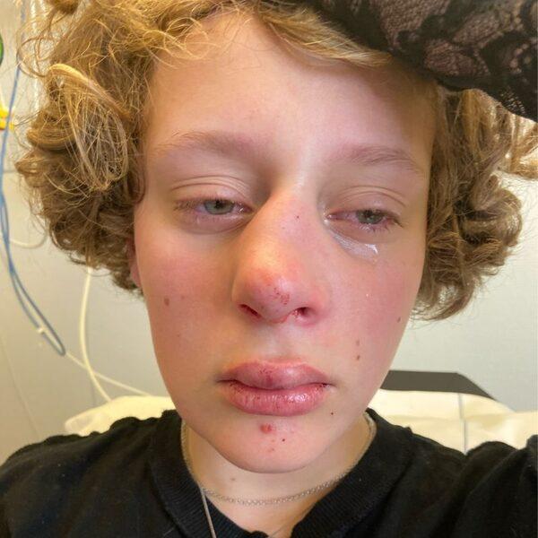 14-jarig Frédérique overladen met steun na zware mishandeling