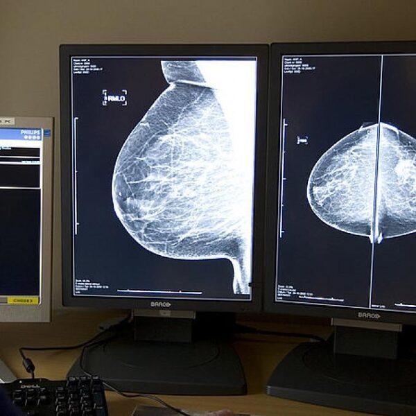 Aantal diagnoses van kanker neemt af: 'Wacht nu niet met naar de huisarts gaan'