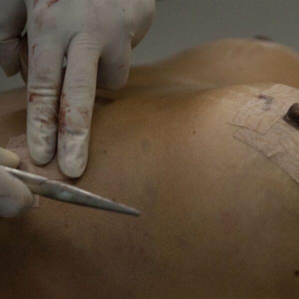 Podcast De Dag: als alle siliconen borstimplantaten gevaarlijk zijn